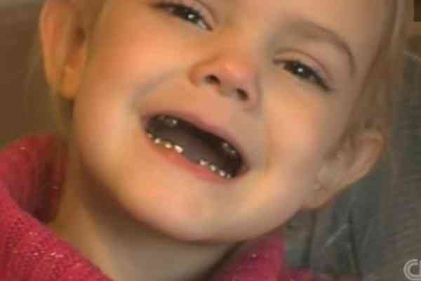 niña dientes plata